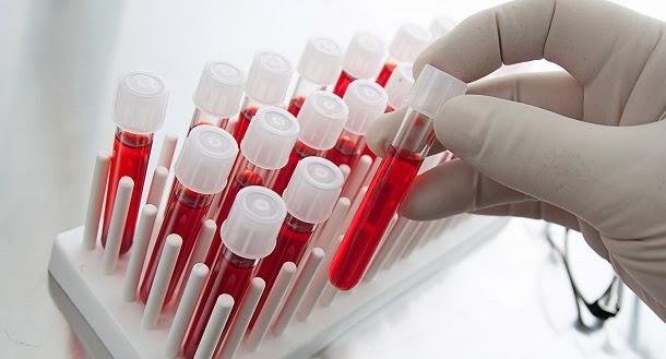 teste ao sangue