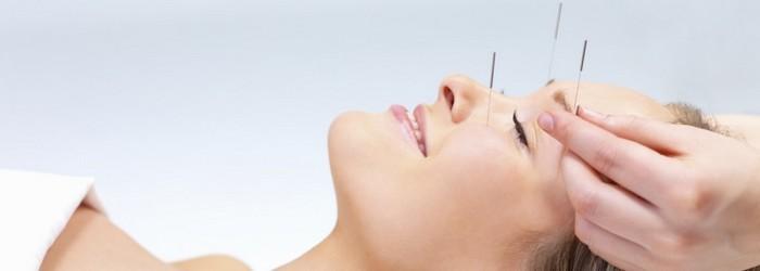 acupuntura-dor-de-cabeca
