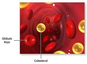 colesterol-alto (1)