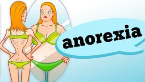 curso de transtorno alimentar anorexia