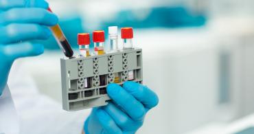Curso de Imunologia Clínica Laboratorial