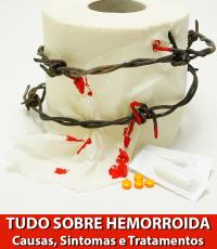 tudo sobre hemorroida: o que é, causas, sintomas, remédios