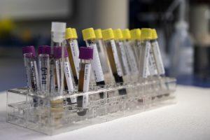 exame de sangue lipidograma colesterol HDL LDL