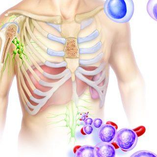 Leucemias Tipos, Causas, Sintomas, Diagnóstico e Tratamento cancer