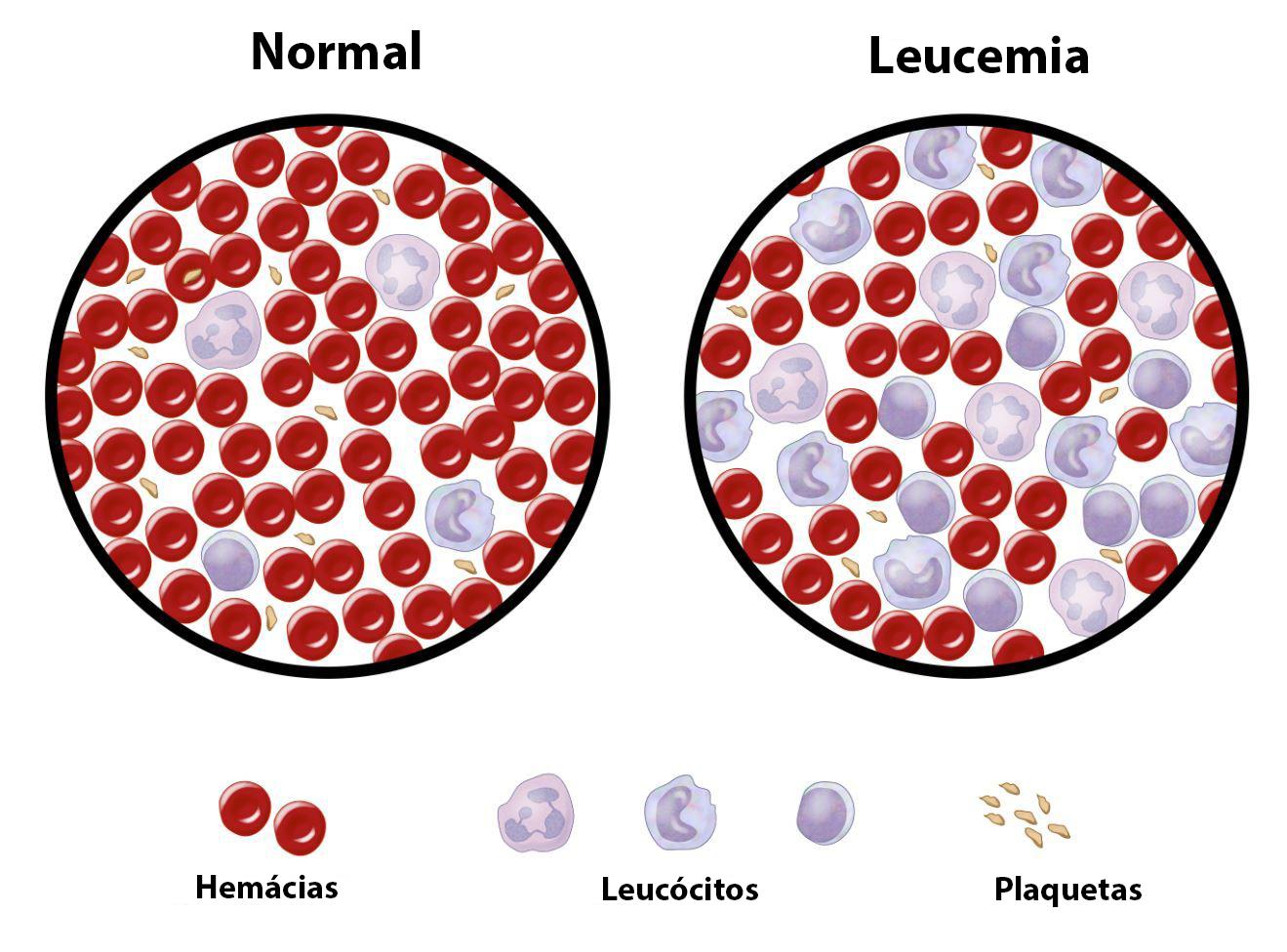 Leucemias Tipos, Causas, Sintomas, Diagnóstico e Tratamento ibap