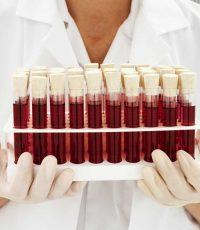 Tudo Sobre o Sangue O que é Função Composição