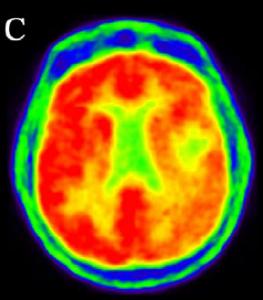medicina nuclear pet scan