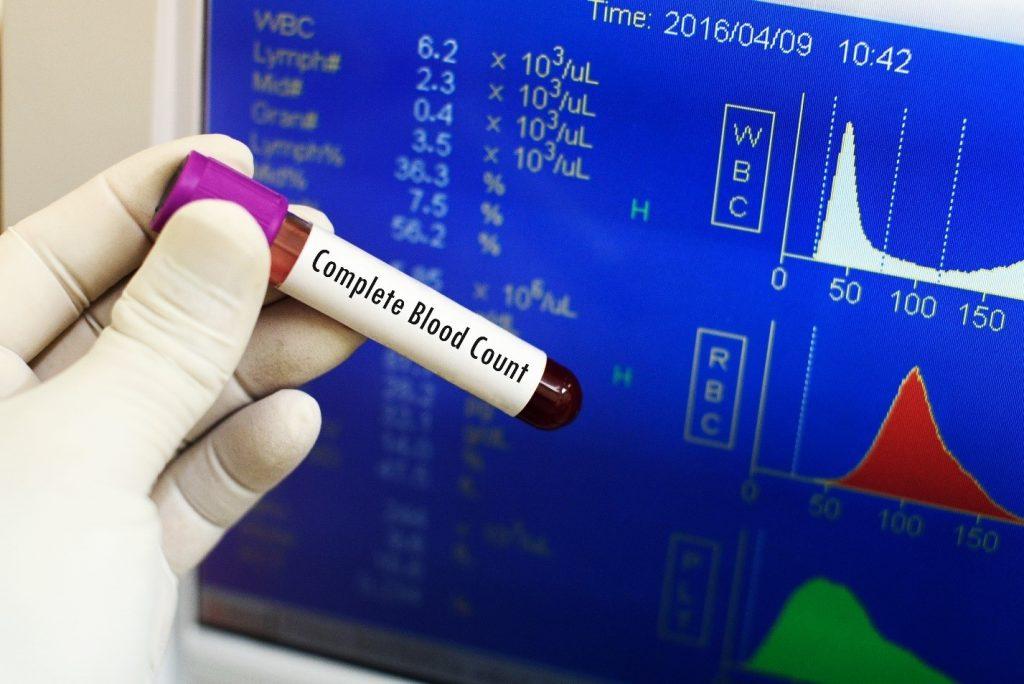 exame de sangue hemograma completo valores de referência