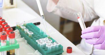 Curso de Interpretação de Exames Laboratoriais - Bioquímica Dosagens Hormonais e de Enzimas