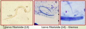 estrongiloidiase intestinal sintomas ciclo tratamento transmissão morfologia larvas 2
