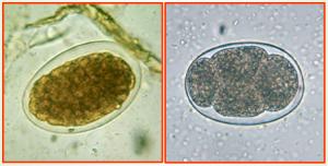 ovo ancilostomideo ancilostomose ancilostomiase amarelao ancylostoma necator necatoriase.jpg