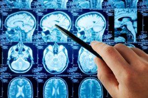 radioterapia radioterápico radiofármacos radiodiagnóstico medicina nuclear 3