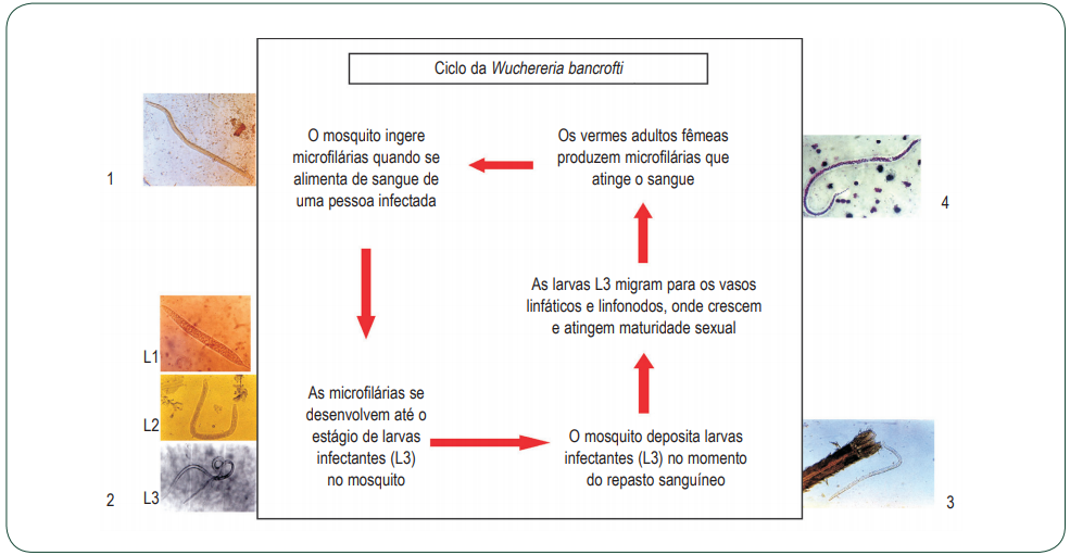 FILARIOSE ELEFANTÍASEFILARIOSE ELEFANTÍASE sintomas mosquito Culex quinquefasciatus Wuchereria Bancrofti filariose linfática ciclo da filariose