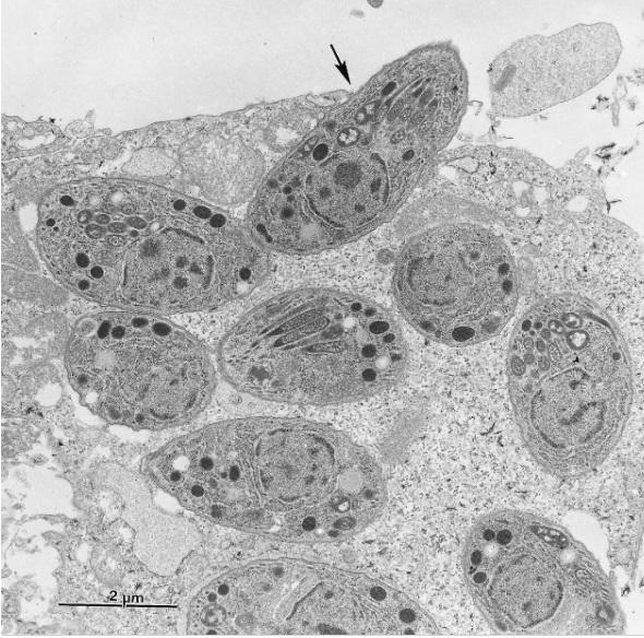 agente etiológico da toxoplasmose Toxoplasma gondii