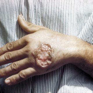 Leishmaniose cutanea Leishmaníase sintomas da Leishmaniose ferida Leishmaniose