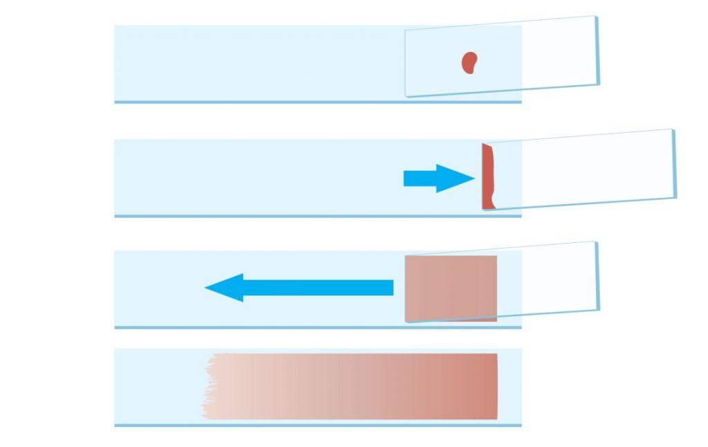 exame parasitológico de sangue gota espessa esfregaço sanguíneo lâmina de parasito parasitologia esfregaço sanguíneo esfregaço delgado