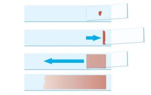 parasitologico-de-sangue-gota-espessa-esfregaço-sanguíneo-lâmina-de-parasito-parasitologia-gota-espessa-esfregaço-sanguíneo