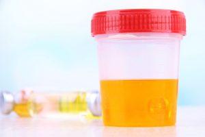 Exame de Urina Tem Que Ser a Primeira Amostra do Dia Jato Médio?