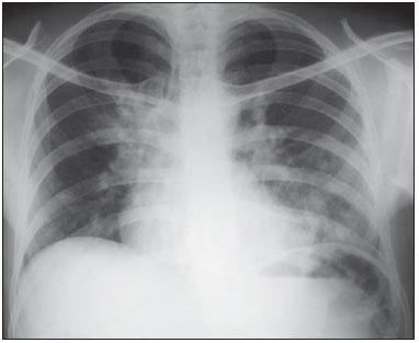 RX Adenosina Deaminase (ADA) no diagnóstico da tuberculose