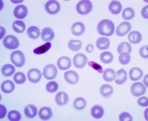 DIAGNOSTICO DA MALARIA malária plasmodium malaria sintomas sintomas da malaria sintomas de malaria malaria tratamento
