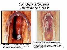 Infecções por fungos na vagina candidíase candida albicans infeccao colo uterino