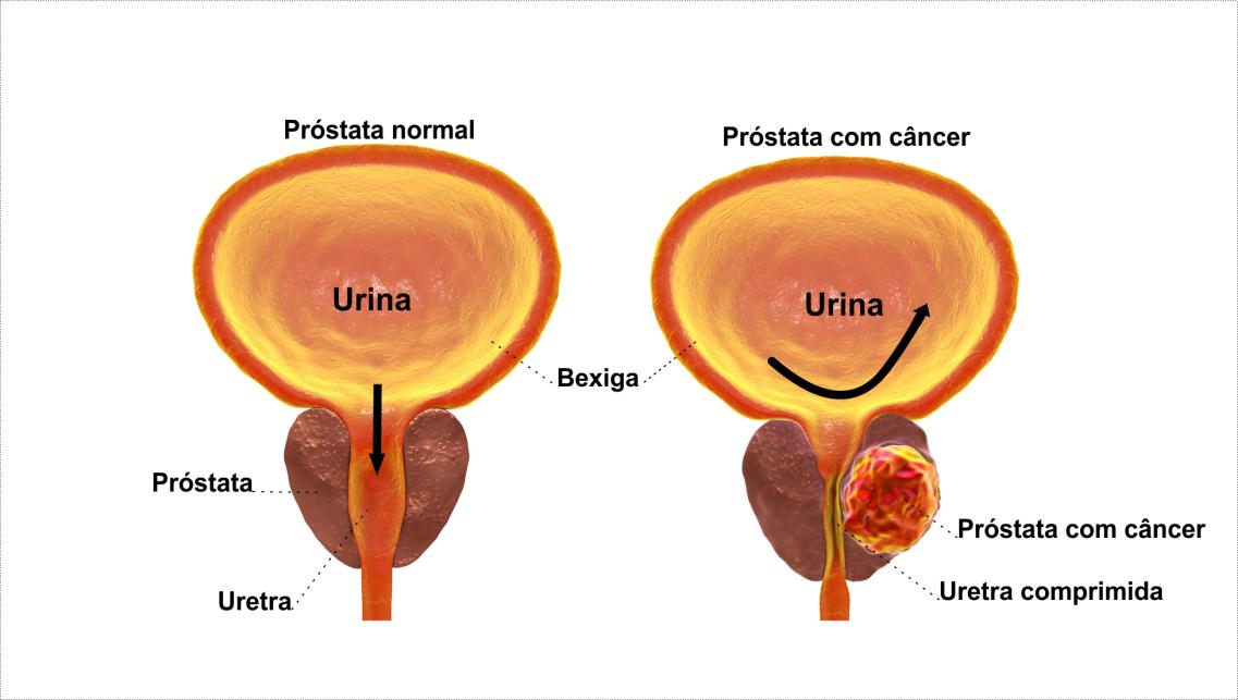 PROSTATA CANCER PSA exame psa, psa total, psa alto