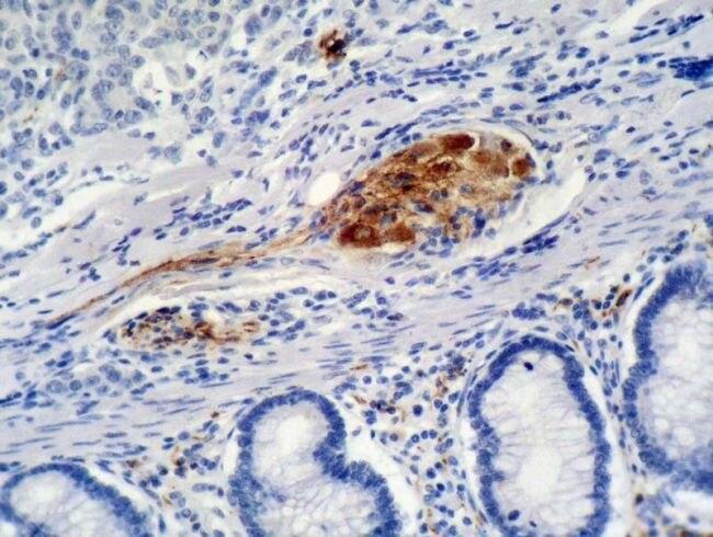 TECNICA DE IHQ Imuno-histoquímica Imunohistoquímica exame imuno histoquímico exame imunohistoquímico estudo imuno histoquímico 1