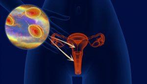 Tricomoníase Trichomonas vaginalis tricomoniose trichomonas