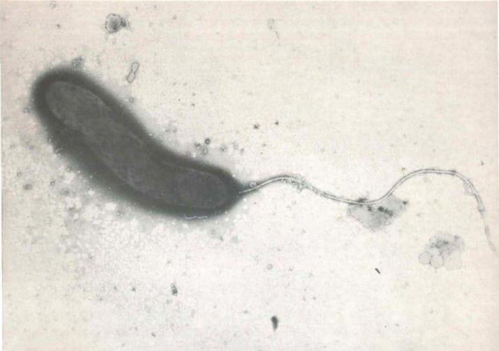 agente etiologico colera Vibrio cholerae Doença bacteriana diarreia grave e desidratação transmitida pela água cólera transmissão cólera sintoma cólera prevenção