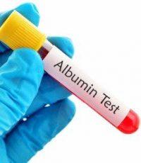 albuina alta albumina eleveda albumina baixa exame de sangue pre albumina