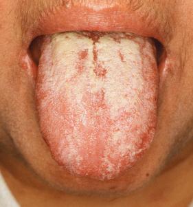 candidíase na boca candidiase oral candidíase bucal candidiase na lingua candidiase bucal sapinho infeccao fungica