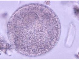 cisto protozoario balantidium balantidium coli