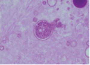 coccidioidomicose coccidioidomicose sintomas imagens