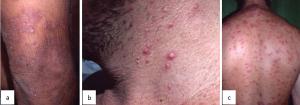 coccidioidomicose disseminada