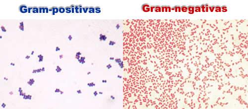 coloração de gram gram positivas gram negativas