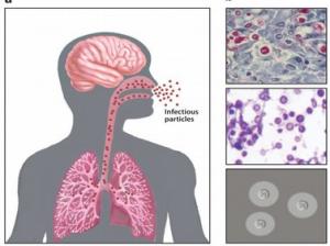 criptococose doença do pombo alergia a pombos coco de pombo infeccao fezes bacteria do pombo
