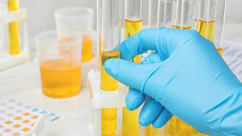 detecção ALBUMINÚRIA MICROALBUMINÚRIA EXAME DE URINA BIOQUIMICA albumina na urina