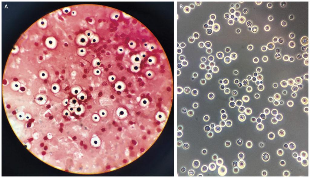 diagnostico criptococose doença do pombo alergia a pombos coco de pombo infeccao fezes bacteria do pombo coloração de gram