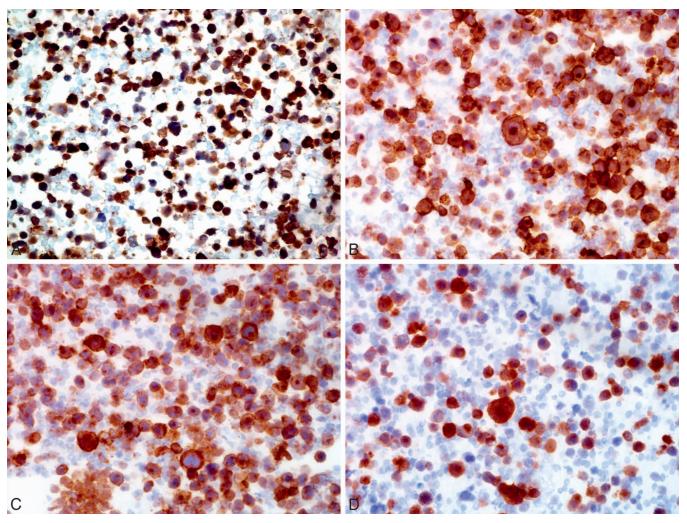 diferenciacao celular no linfoma Imuno-histoquímica Imunohistoquímica exame imuno histoquímico exame imunohistoquímico estudo imuno histoquímico