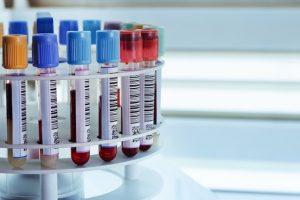 exame colinesterase sérica colinesterase plasmática enzima acetilcolinesterase