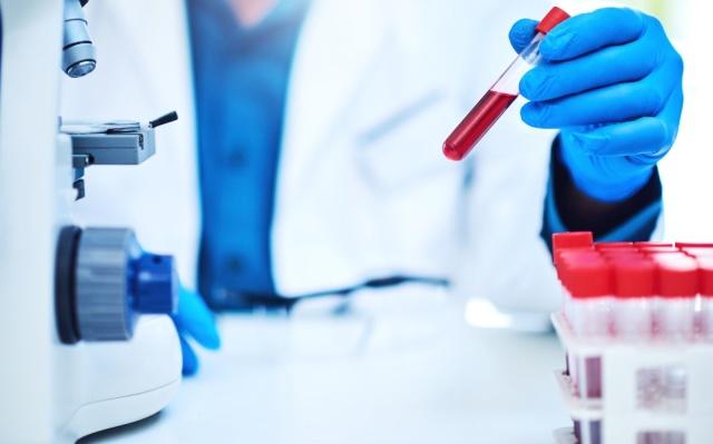 exame de sangue mioglobina