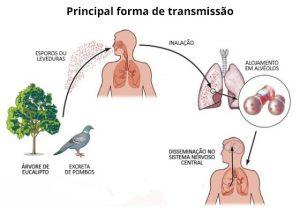 forma de transmissão criptococose doença do pombo alergia a pombos coco de pombo infeccao fezes bacteria do pombo ciclo biologico vetor agente etiologico pombo fezes