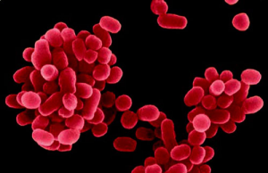 o agente causador da brucelose brucella spp
