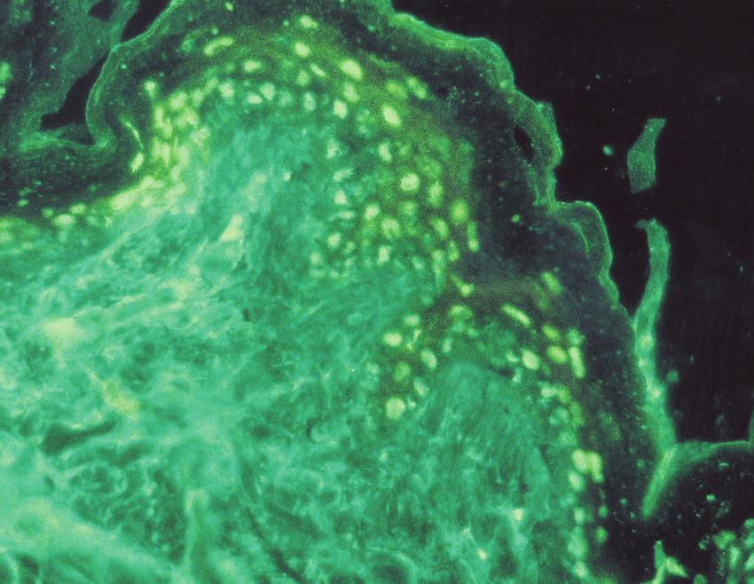 pele peri lesionada imunofluorescencia direta e indireta