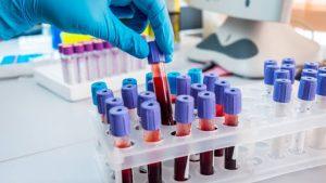 principais erros na fase pré-analítica dos exames laboratoriais analises clinicas laboratorio exames