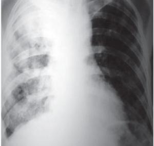 radiografia diagnostico coccidioidomicose
