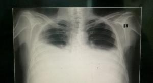torax pulmao derrame pleural Adenosina Deaminase (ADA) no diagnóstico da tuberculose