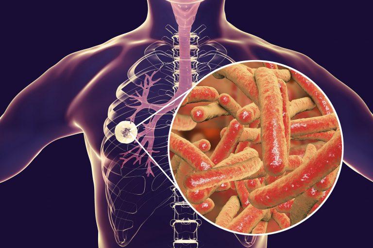 resposta imunologica Adenosina Deaminase (ADA) no diagnóstico da tuberculose