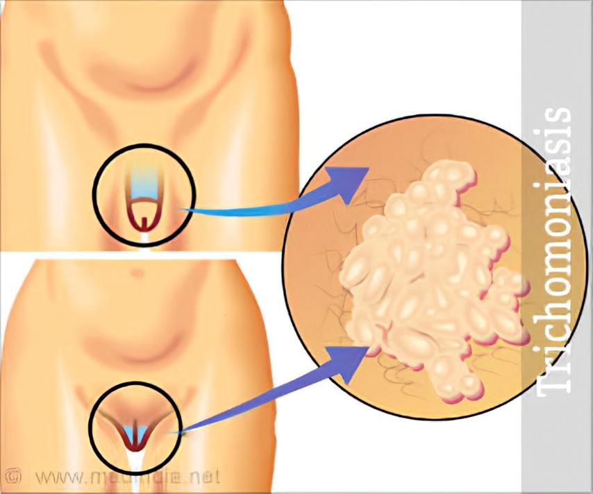 sintomas da Tricomoníase Trichomonas vaginalis na mulher