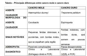 tabela diferença entre cancro mole e cancro duro sintomas sinais candro tratamento